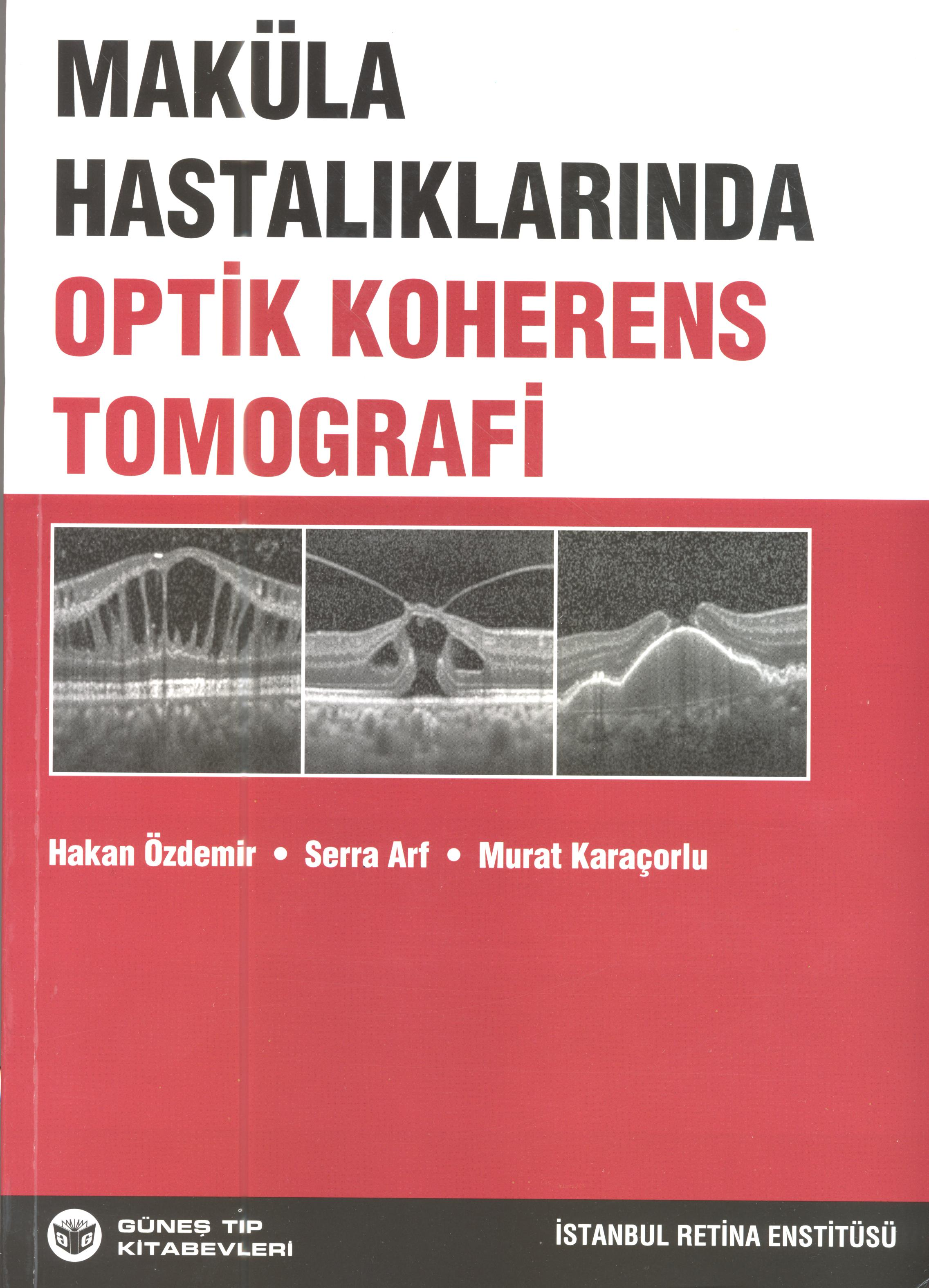 Makula Optik Koherens Tomografi